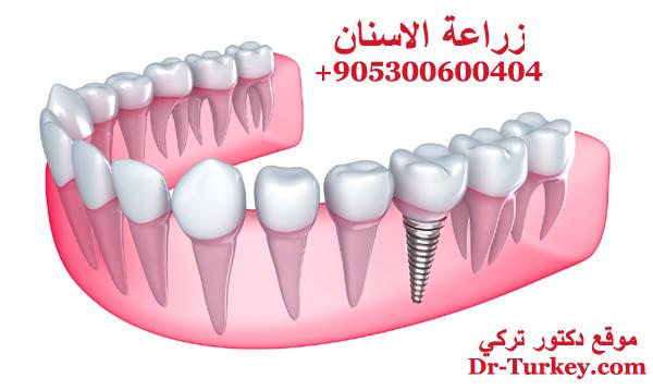 عملية زراعة الاسنان في تركيا في أفضل مراكز إسطنبول Dental Implants موقع دكتور تركي