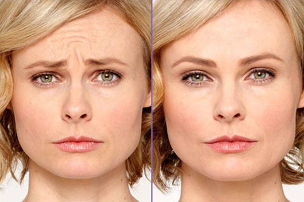 علاج حقن البوتوكس في تركيا في أفضل مشافي إسطنبول Botox Injection - موقع  دكتور تركي عمليات التجميل في تركيا